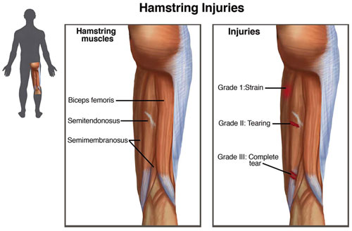 Hamstring injuries_Small