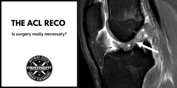 Is ACL Surgery Really Necessary?